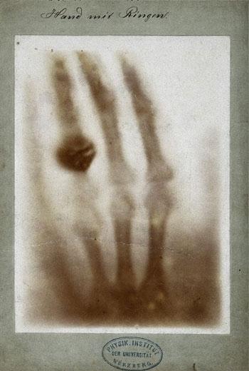 Η πρώτη ακτινογραφία λήφθηκε στις 22 Δεκεμβρίου 1895. Βλέπουμε το χέρι της συζύγου του Röntgen. Η ακτινογραφία παρουσιάστηκε δημόσια τον Ιανουάριο του 1896