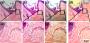 Στις εικόνες a έως c, ανθρώπινα τριχοθυλάκια όπως φαίνονται σε επαγγελματικό μικροσκόπιο Olympus. Στο d, η αντίστοιχη εικόνα με τον νέο πλαστικό φακό (Πηγή: University of Houston)